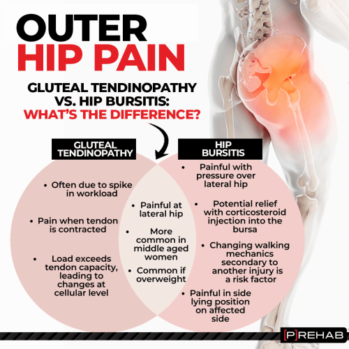 hip bursitis versus gluteal tendinopathy outer hip pain the prehab guys