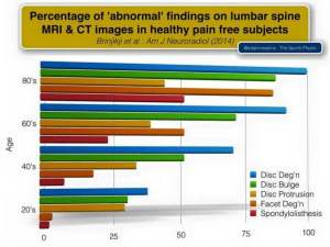 percentage of abnormal findings on MRI and CT exercises for disc herniations the prehab guys