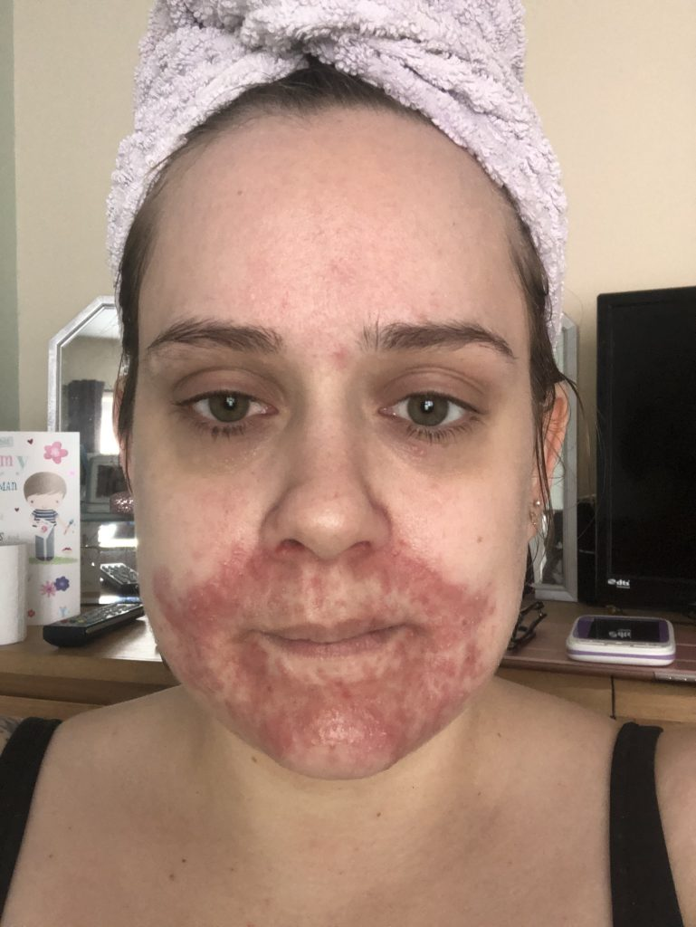 My Nightmare Skin - Suffering from Atopic Dermatitis