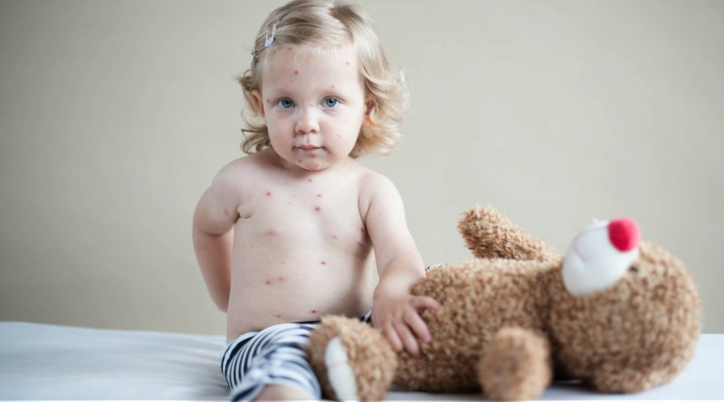 Child with measles.