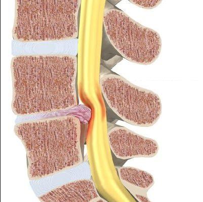 herniation