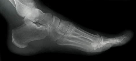 xray for ankle fractures