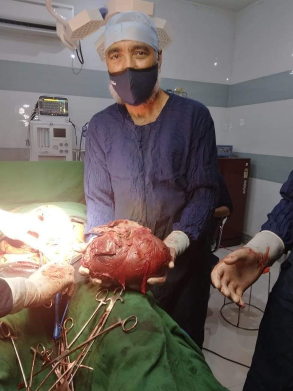 Doctor Removed Around 3g Cyst from a patient during the surgery In North Kashmir Nursing Home in Handwara
