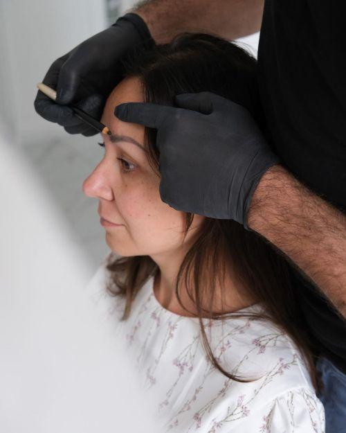 Hair Transplantation Procedure