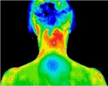 Thermography scan of a patients upper back.