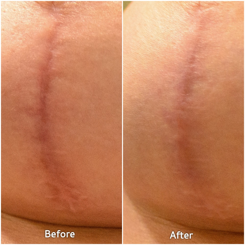 Lesley Murphy shows her before/after photos from Embrace Scar Therapy Treatment