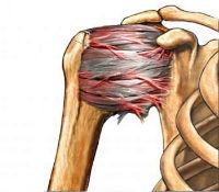 Shoulder Pain Condition
