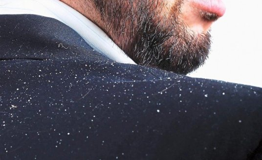 How to get rid of dandruff in one wash (5)