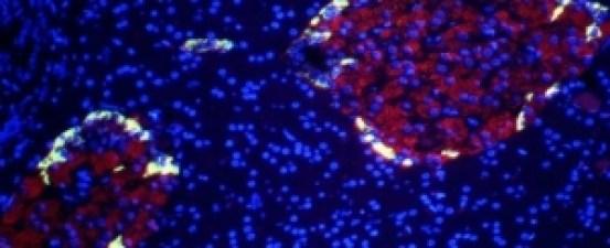 beta-cellss_1024