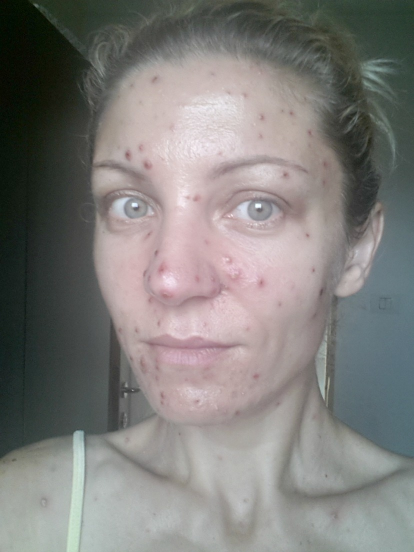 Chickenpox in adults