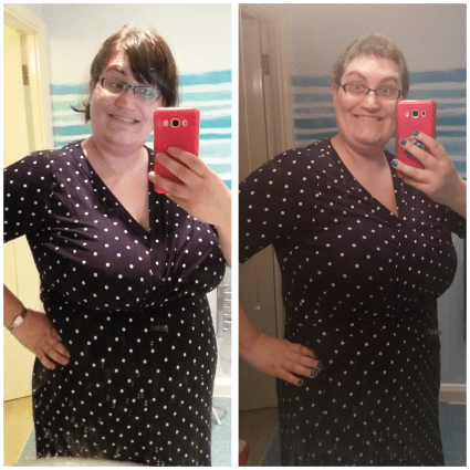 Side by side photos of Alison pre- and post-surgery. She is wearing a polka dot dress and is smiling in both photos. The photos are selfies taken with her smartphone.