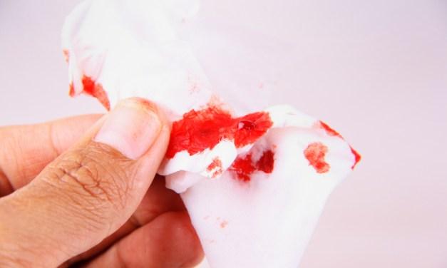 SGEM#53: Sunday, Bloody Sunday (Epistaxis and Tranexamic Acid)
