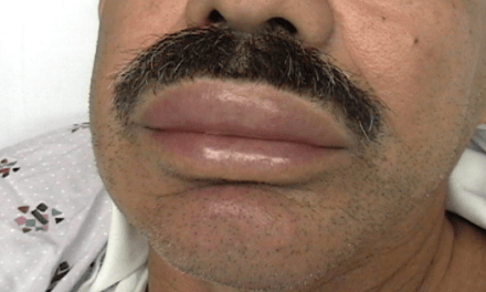 SGEM#110: I Saw the Signs of Angioedema