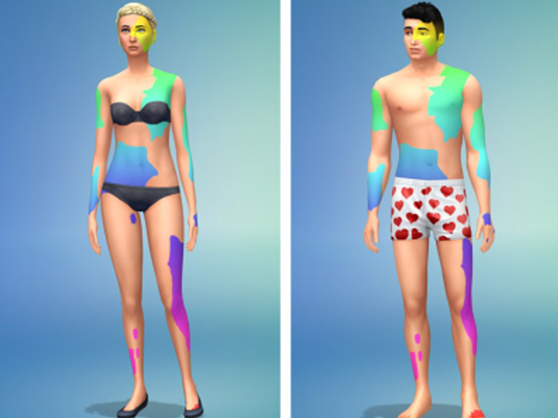 Vitiligo Skin Detail The Sims 4 Catalog