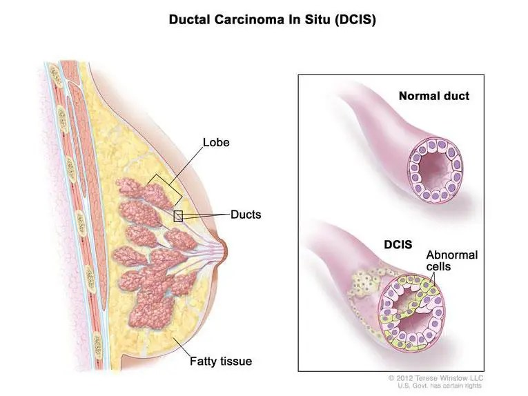 DCIS - ductal carcinoma in situ - breast cancer image