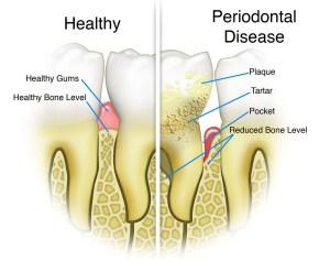 Periodontal-Disease-Trailhead-Dental