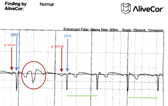 Are Your Palpitations Due to Benign PVCs? | The Skeptical Cardiologist