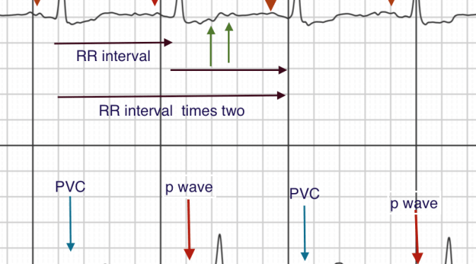 Sustained Atrial Fibrillation or Not: The Vagaries and Inaccuracies of AliveCor/Kardia and Computer Interpretation of ECG Rhythm