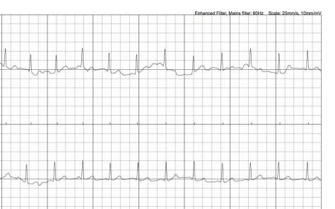 EKG-3