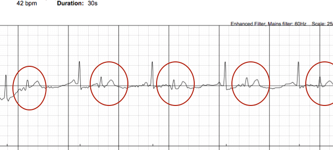 AliveCor (Kardia) Has A Premature Beat Problem: How PVCs and PACs Confuse The Mobile ECG Device