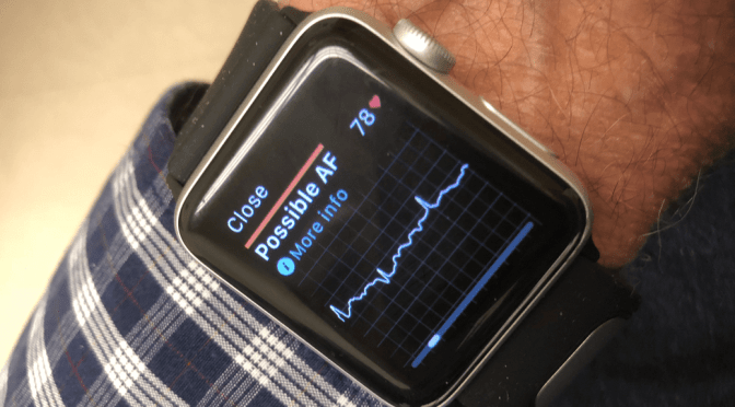 A Guide To Using Apple Watch and Kardia ECG devices-What They Can and Can't Do
