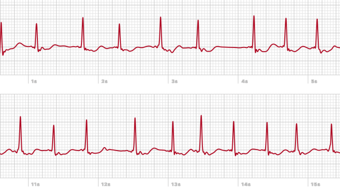 Apple Watch Fails To Notify Patient Of 3 Hour Episode Of Rapid Atrial Fibrillation