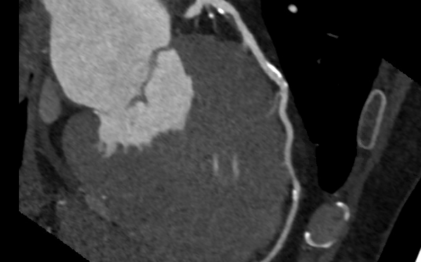 A Patient's Confusing Journey Into The Quagmire Of Cardiac Imaging: A Cautionary Tale