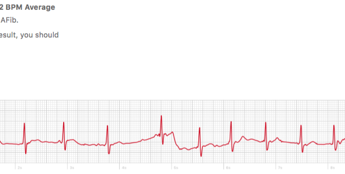 Atrial Fibrillation Detection, Personal  ECG Monitoring and Ablation:  A Patient's Story
