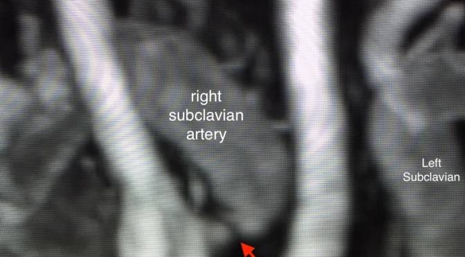 A Septuagenarian  Hockey Player With Subclavian Stenosis Hangs Up His Skates