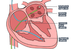Ablation For Atrial Fibrillation: One Patient's Experience