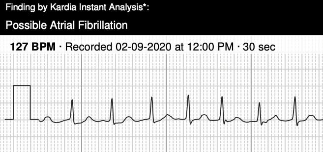 AliveCor's Kardia Mobile ECG Accurately Identifies Atrial Fibrillation >120 BPM