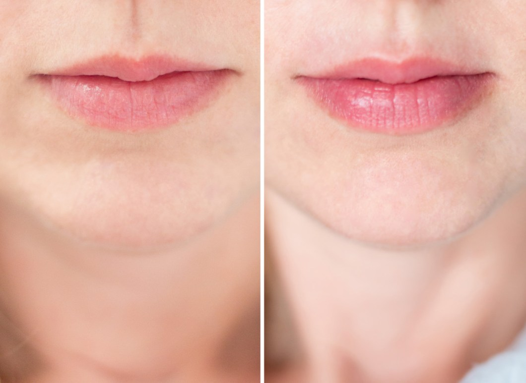 lip plumping before and after | Julakutuhy co