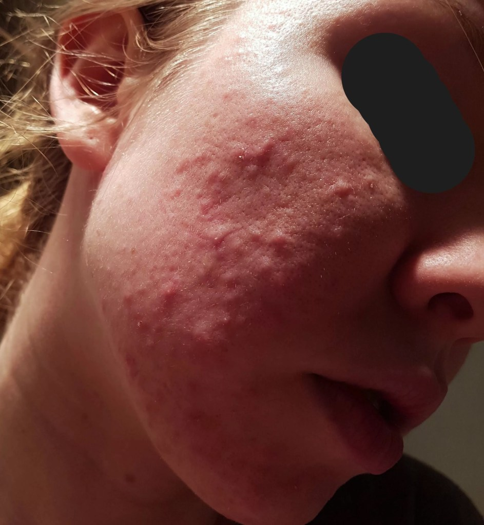 From Fungal Acne/Folliculitis to Clear Skin (with Pictures ...