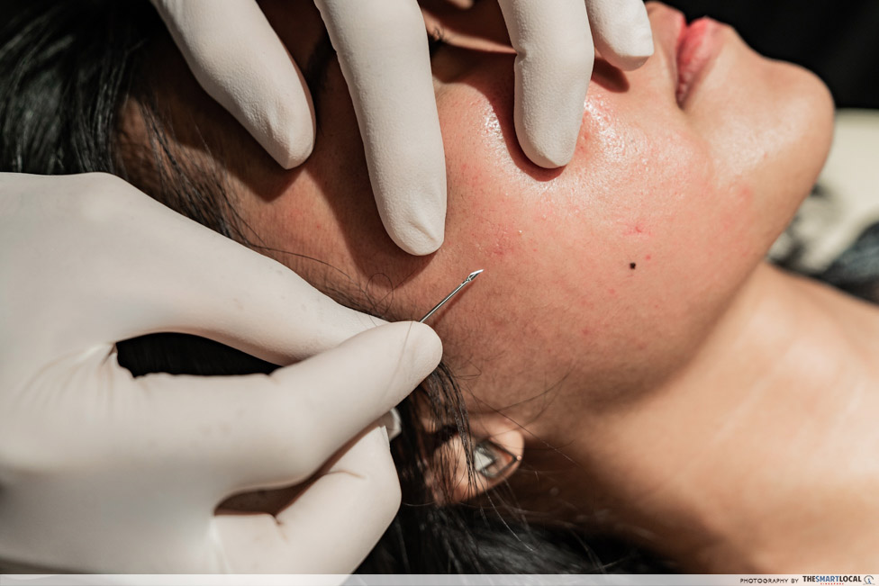 acne scar removal treatment - subcision