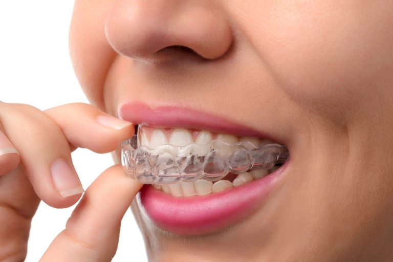 woman's holding an Invisalign tray in her mouth