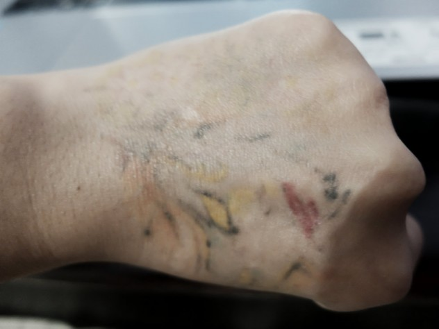 Picosure Laser Tattoo Removal Procedure (Before and After ...