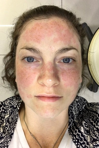 Laser treatment seoul