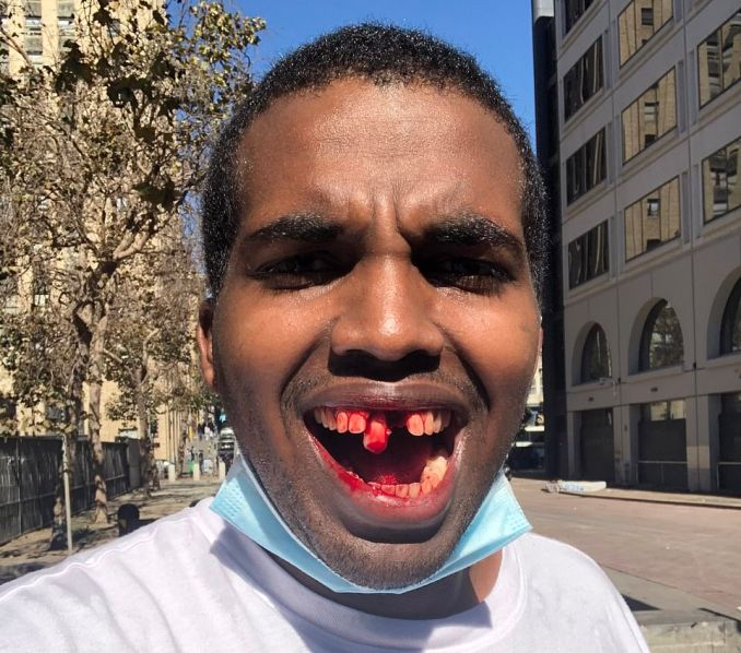 Team Save America event organizer Philip Anderson later posted graphic photos on social media of his bloodied mouth missing a tooth and wrote that 'Antifa attacked me for no reason'