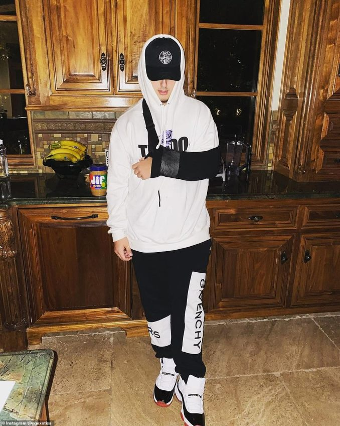 The teenager suffered minor injuries in the crash.He later posted this photo of himself on Instagram with his left arm in a sling