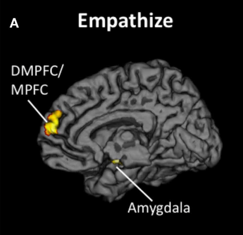 Brain activity patterns associated with empathy