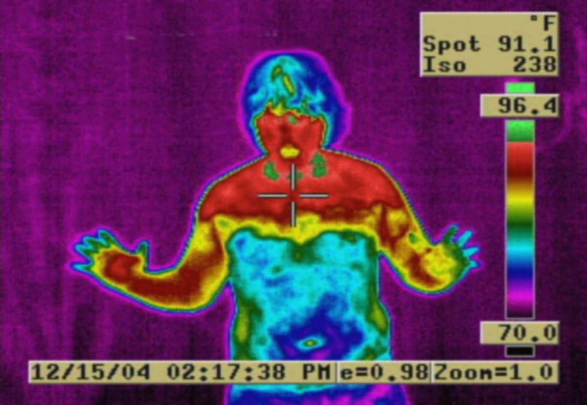 ets-surgery-thermal-wikimedia-commons