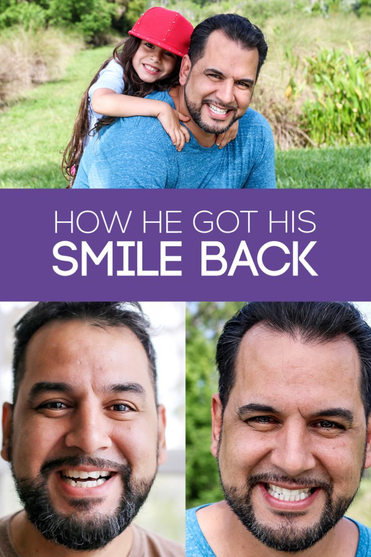 #sponsored My husband is so handsome. He is such a good person. He's got confidence, but is so humble. And while I think he's perfect, I knew that the one thing that has always bothered him was his smile. I knew that partnering with Smile Direct Club would change his life. They are helping him to find his smile.