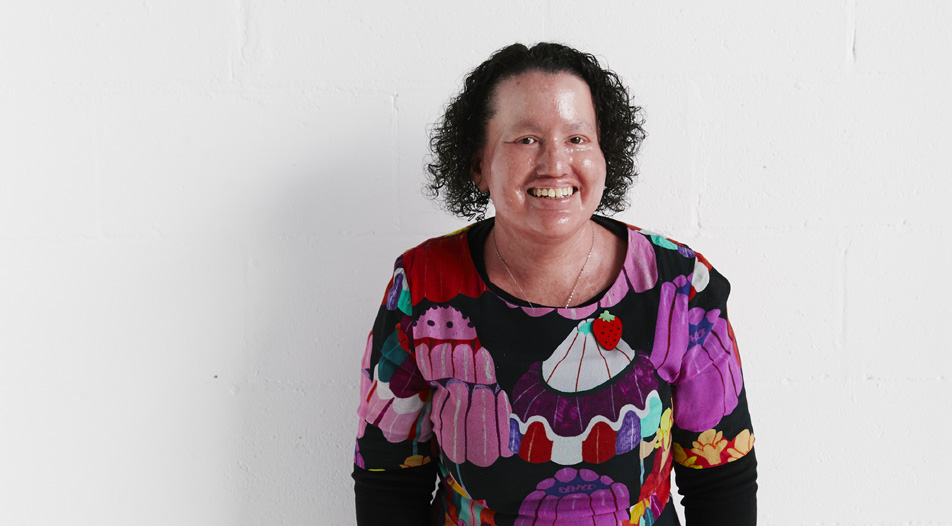 A woman with a red face and dark curly hair is smiling. She's wearing a bright and colourful dress.