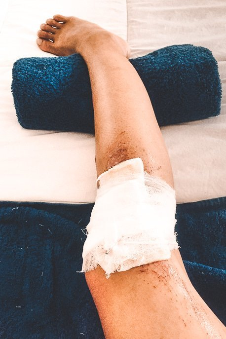 Jasmine's injured right knee bandaged up after falling off the scooter in Nusa Penida