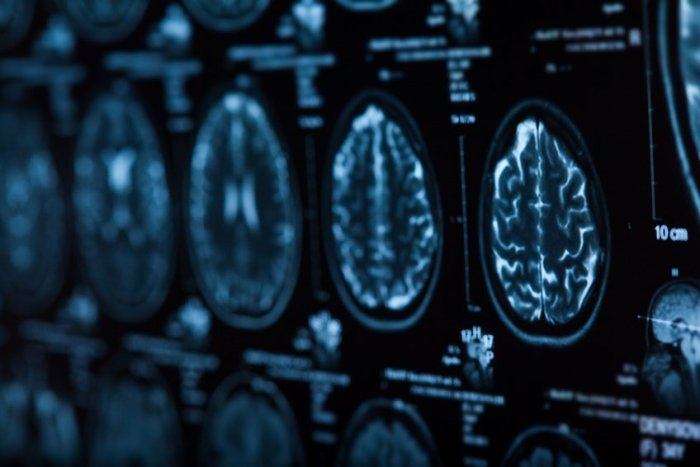 human brain x-rays