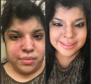 Cynthia shows her butterfly rash from lupus