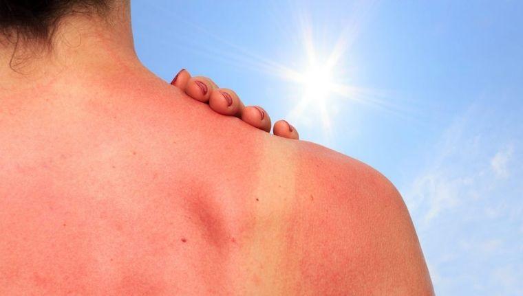 sunburn cared for