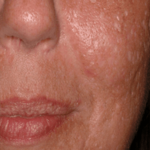 Scar-Removal-Before4