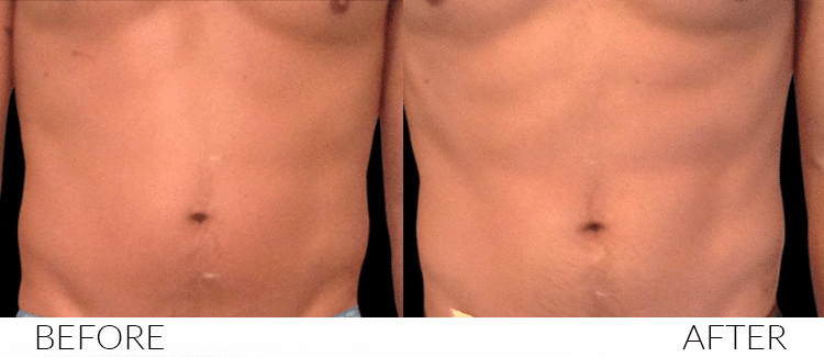 BEFORE-AND-AFTERS-Emsculpt3