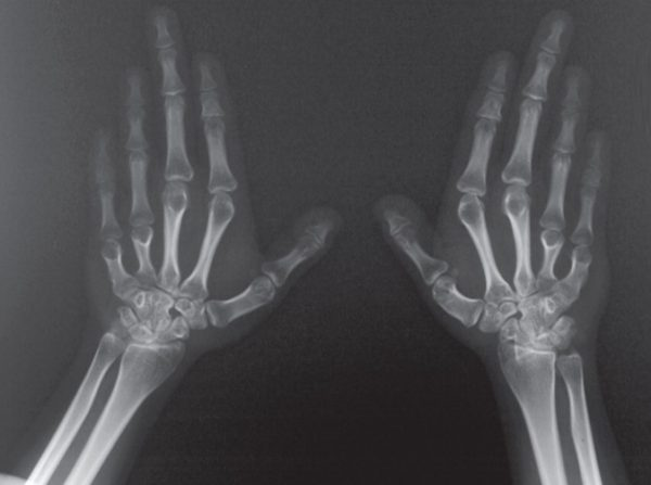 Pseudopseudohypoparathyroidism